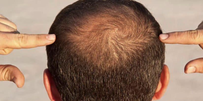 عمليات زرع الشعر